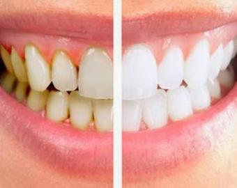 удаление_зубного_камня