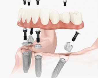 All-on-4 имплантация зубов