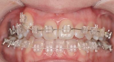 Зубы до