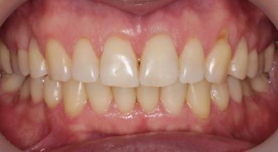 Избавились от скученности зубов