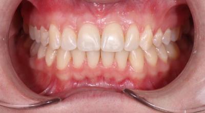 Зубы после брекетов