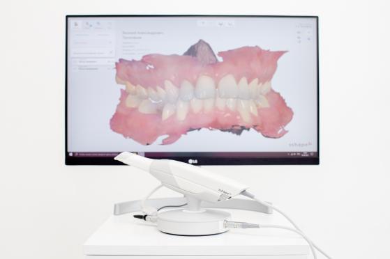 Сканер зубов